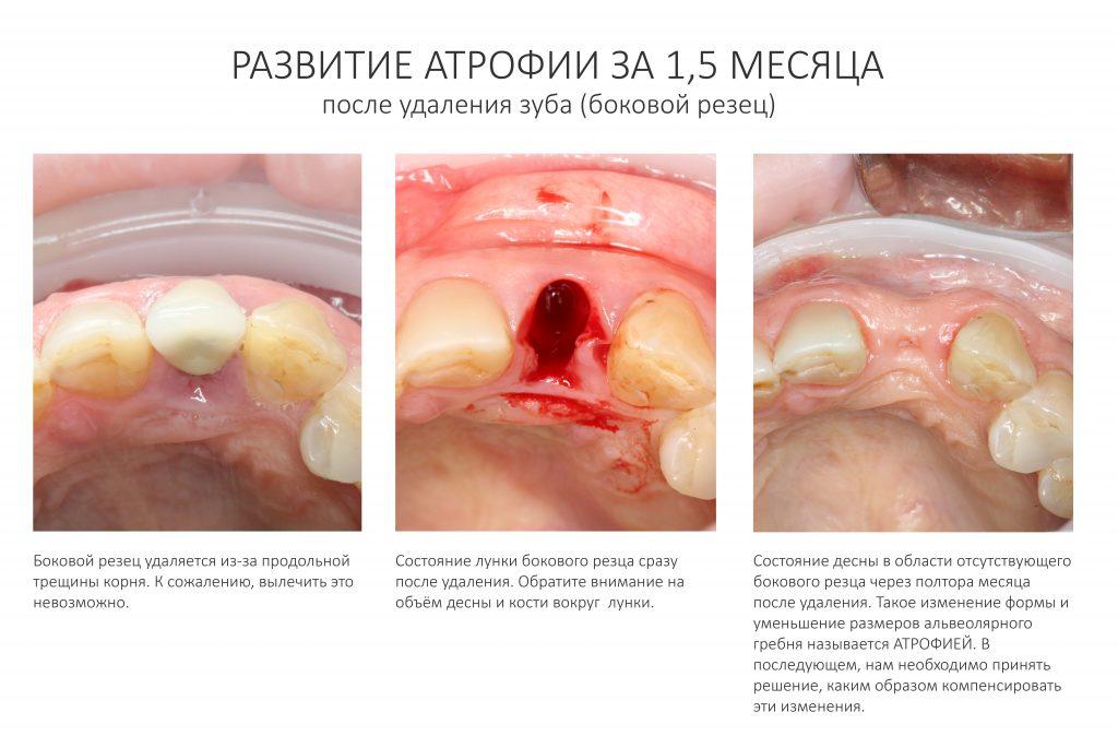 Вставить наращивание кости имплантат