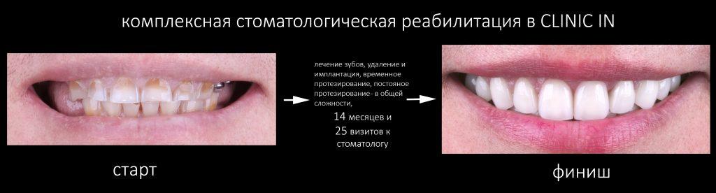 Восстановление зубов в Ивантеевке: телефоны и адреса поликлиник, отзывы и цены
