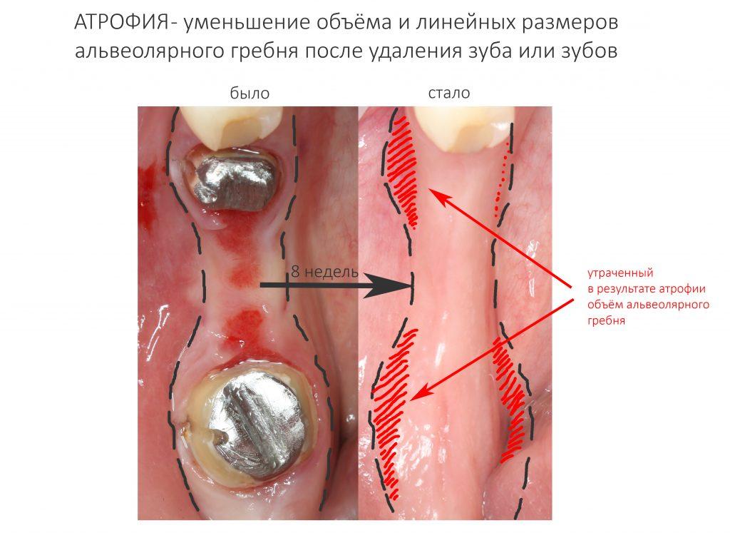 Что такое атрофия костной ткани челюсти